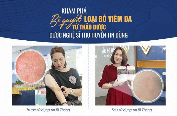 Nghệ sĩ Thu Huyền cải thiện viêm da cơ địa sau 2 tháng