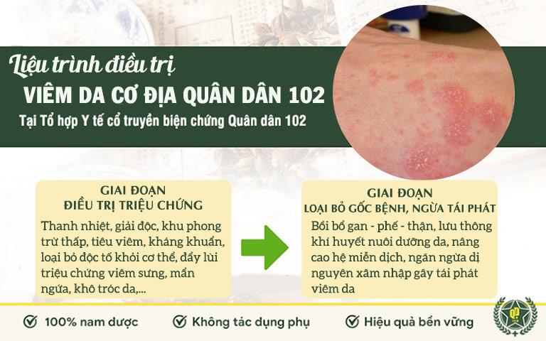 Phác đồ điều trị 2 giai đoạn với bài thuốc viêm da cơ địa Quân dân 102