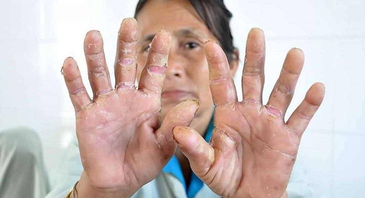 Bệnh á sừng gây ra những tổn thương ảnh hưởng đến ngoại hình và tâm lý người bệnh