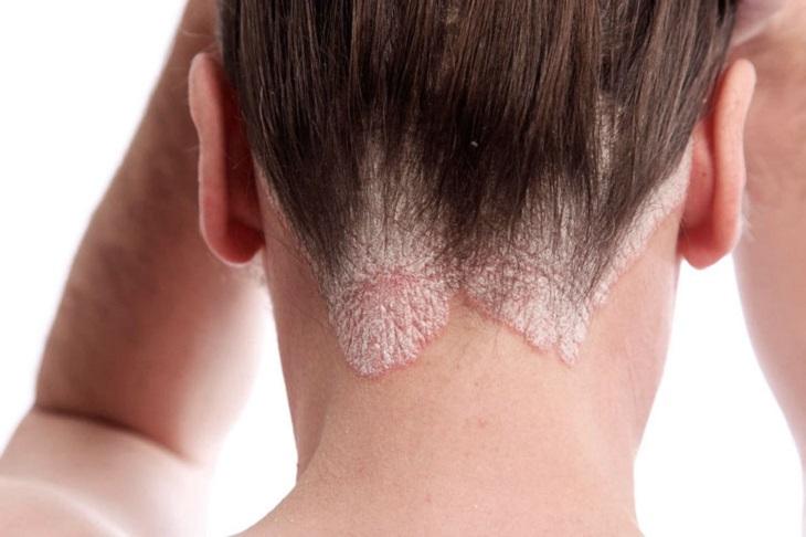 Da đầu là vị trí thường dễ bị á sừng