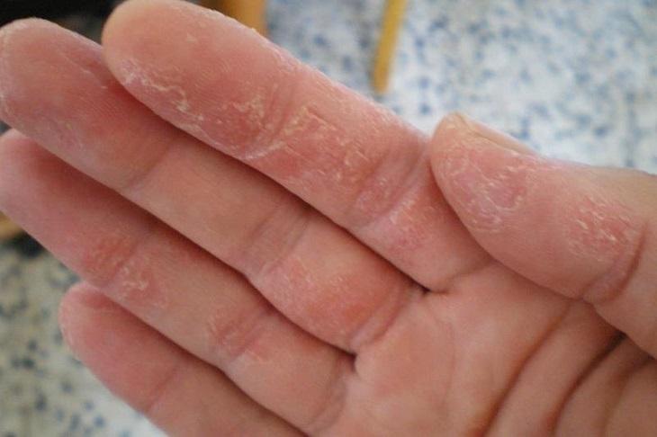 Cần phân tích tế bào da để xác định thể bệnh