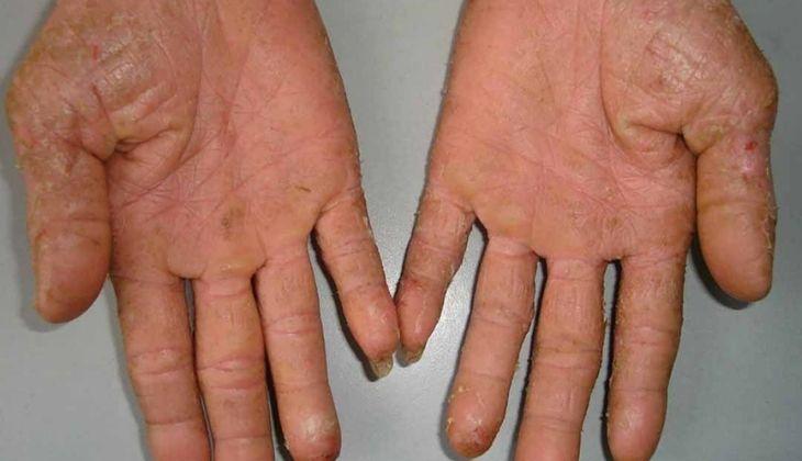 Tìm hiểu các cách chữa bệnh á sừng hiệu quả