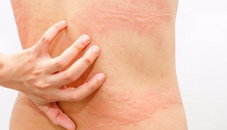 Biểu hiện nổi mẩn ngứa ở người bệnh bị dị ứng thực phẩm