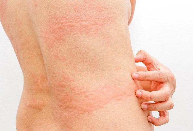 Triệu chứng mề đay không có khả năng lây nhiễm từ người sang người