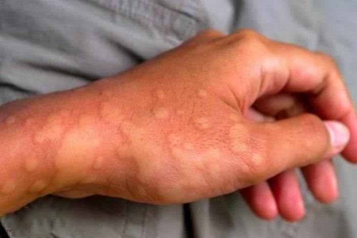 Những vết mẩn đỏ, ngứa ngáy là biểu hiện thường thấy
