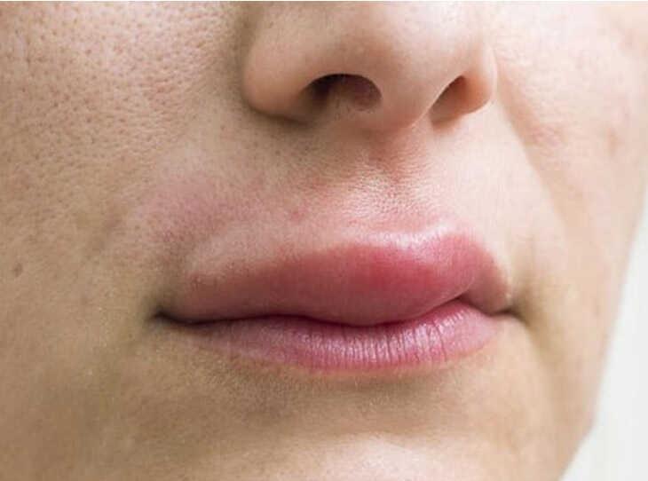 Khi bị ở môi sẽ làm sưng tấy môi