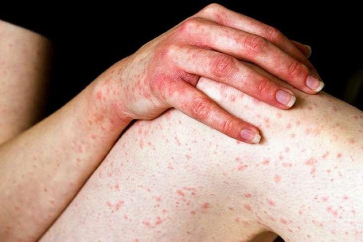Đặc trưng của bệnh là triệu chứng mẩn đỏ và ngứa ngáy dữ dội vào ban đêm
