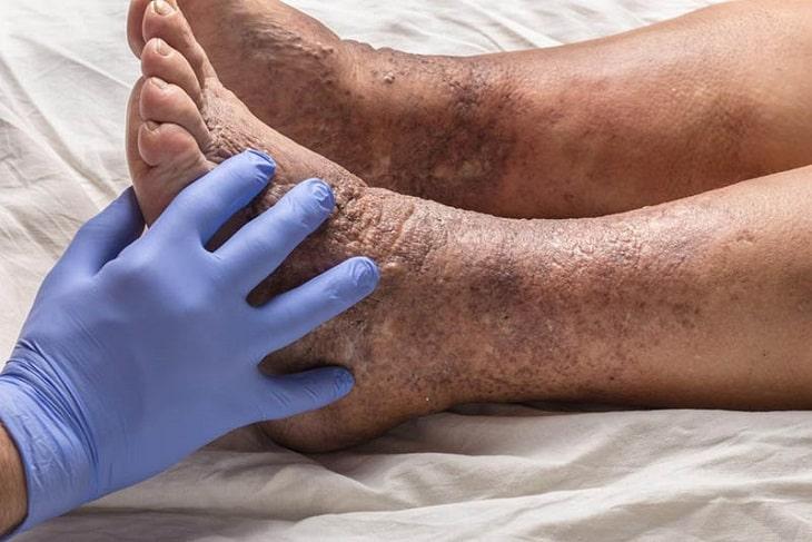 Bệnh lý cần sớm được điều trị tránh những biến chứng nguy hiểm