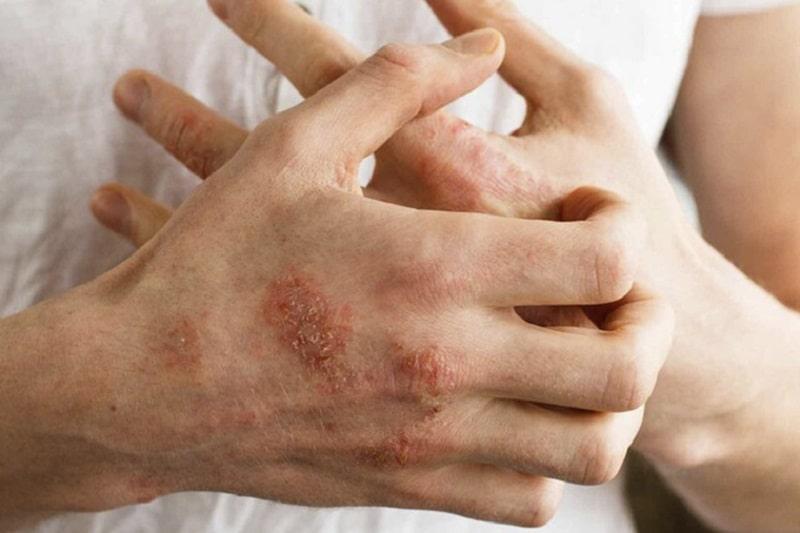 Hình ảnh bệnh nhân bị viêm da cơ địa ở người lớn