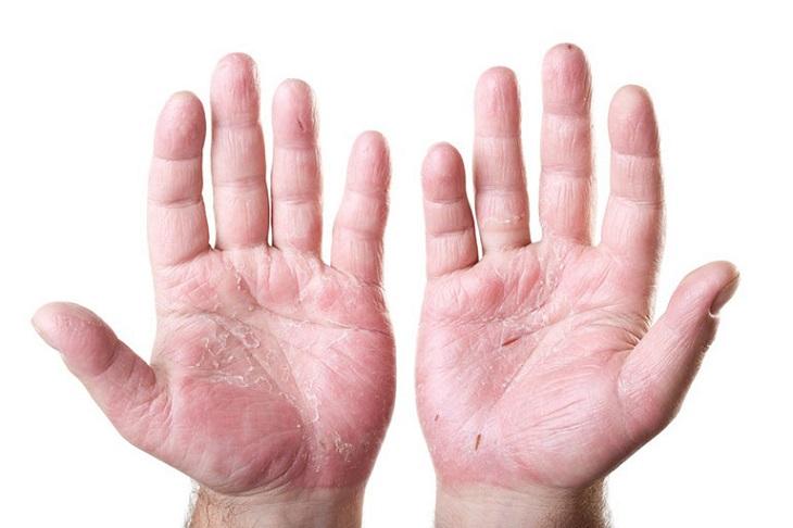 Hình ảnh viêm da cơ địa ở tay thường gặp ở bệnh nhân