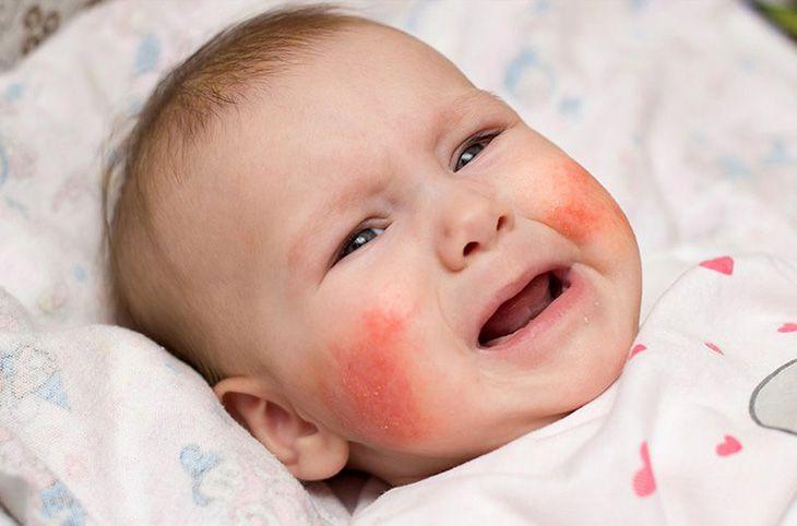 Hình ảnh viêm da cơ địa ở trẻ sơ sinh giai đoạn cấp tính
