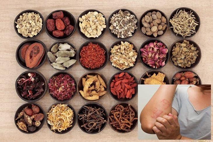 Đông y hướng đến loại bỏ tận gốc nguyên nhân gây bệnh, ổn định chức năng tạng phủ và tăng cường hệ miễn dịch