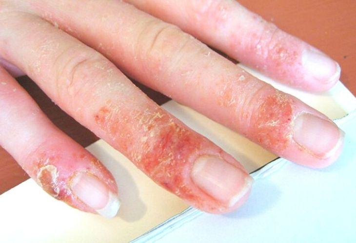 Ngón tay, bàn tay xuất hiện các mảng da bong tróc