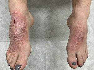 Bị chàm ở chân, tay là gì? Tìm hiểu nguyên nhân và biện pháp chữa trị