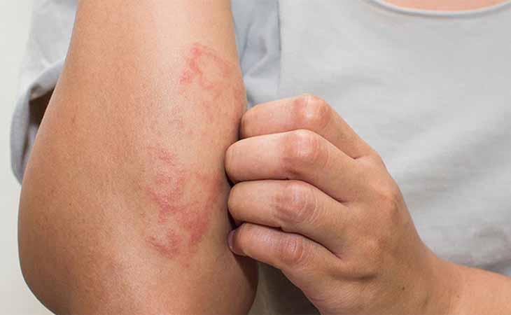Không nên dùng tay gãi các vùng da bị chàm