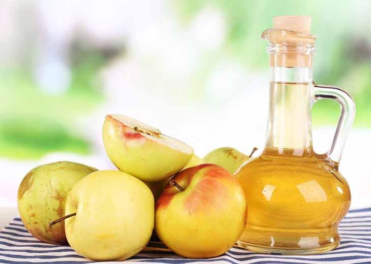 Sử dụng giấm táo là một cách chữa vảy nến da đầu tại nhà đơn giản