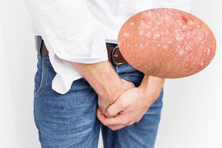 Bệnh chàm bìu có tên tiếng Anh là Scrotal dermatitis