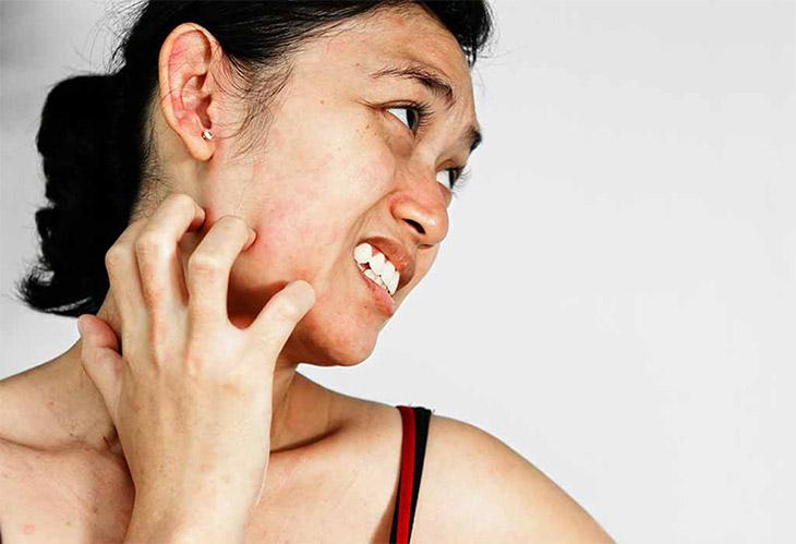 Thói quen cào gãi có thể làm tăng tổn thương, gây bội nhiễm