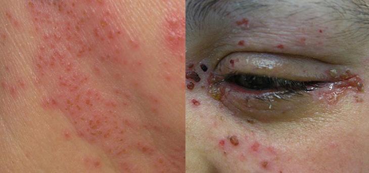 Chàm bội nhiễm ở người lớn gây những tổn thương ở vùng da mắt