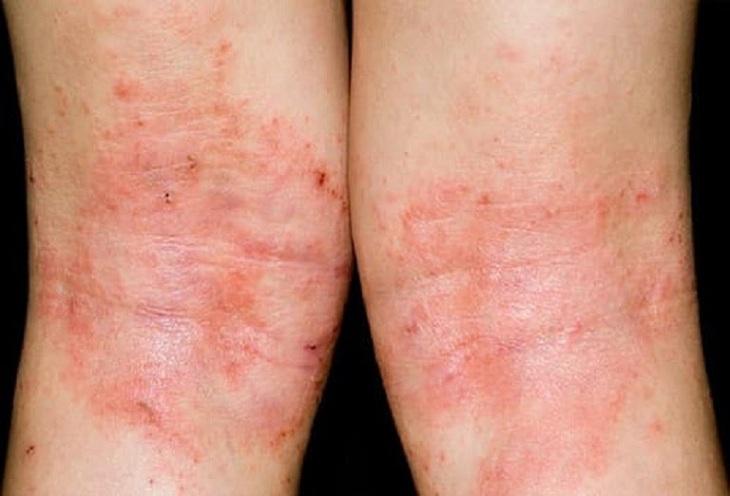 Chàm hóa là bệnh lý da liễu phổ biến, xuất hiện do vi nấm