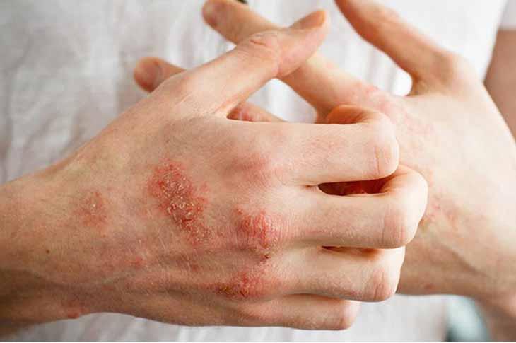 Chàm khô là bệnh da liễu phổ biến hiện nay