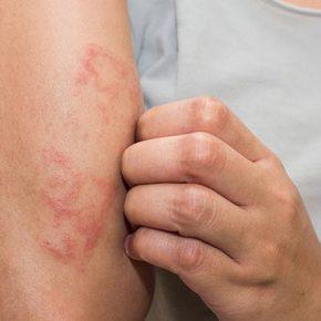 Chàm ngứa: Nguyên nhân, triệu chứng và cách điều trị an toàn