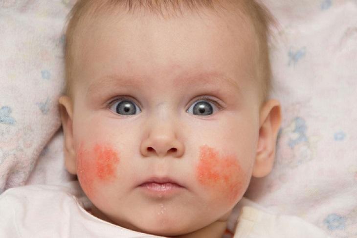 Hình ảnh chàm sữa ở trẻ em thường gặp hiện nay
