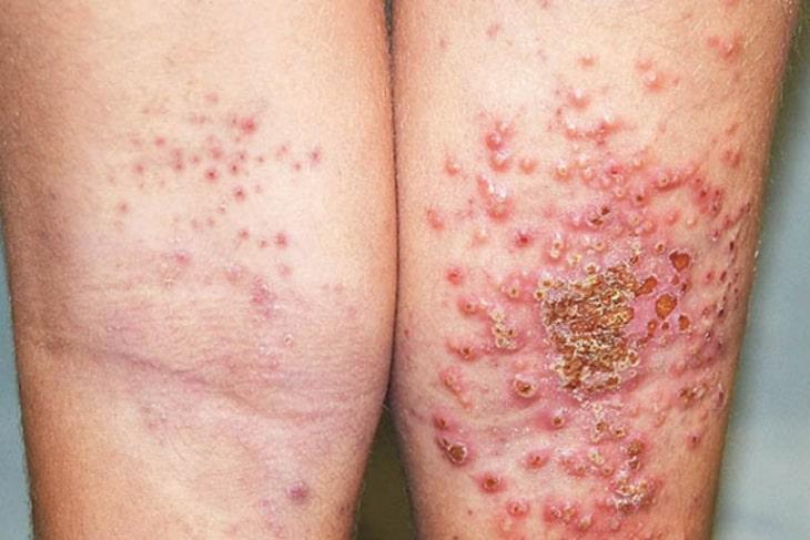 Viêm da bội nhiễm là tình trạng cấp độ bệnh rất nghiêm trọng của viêm da cơ địa