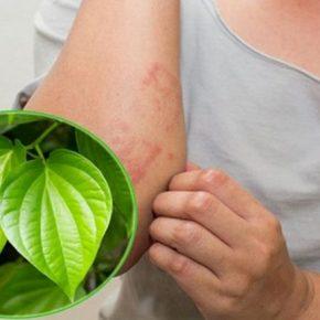 Chữa mề đay bằng lá trầu có hiệu quả không là vấn đề được nhiều người quan tâm