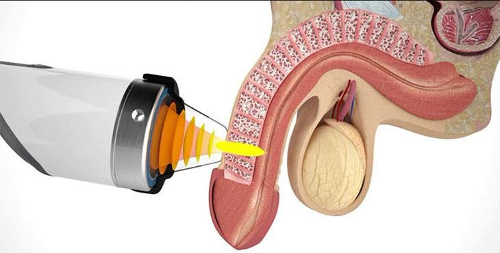 Quá trình áp hút chân không giúp dương vật tăng cường bơm máu đến dương vật.