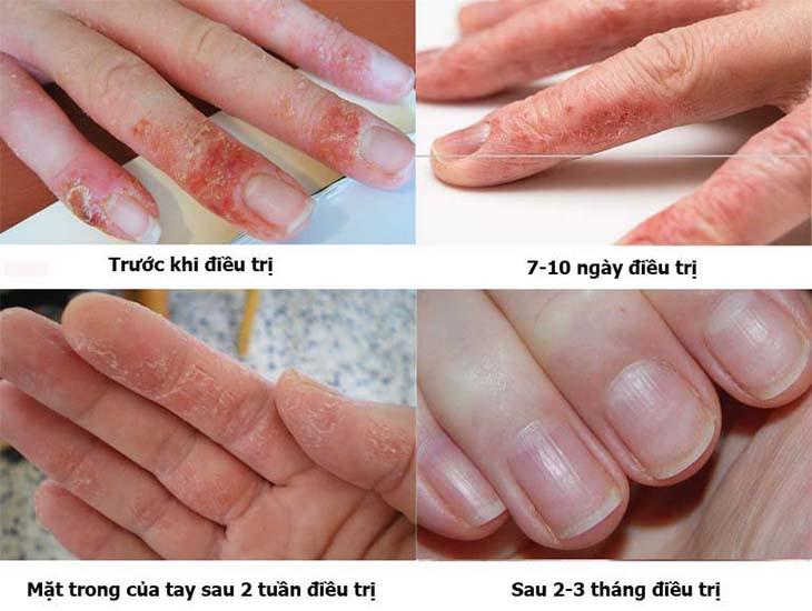 Da tay của bệnh nhân phục hồi sau điều trị