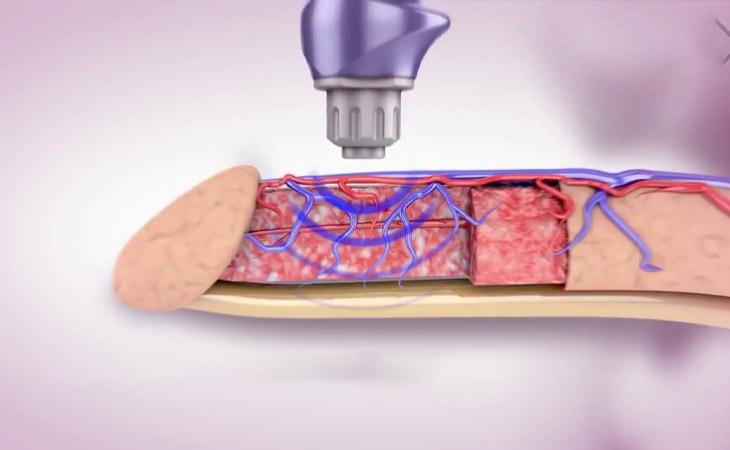 Quá trình điều trị thường không gây chảy máu hay bất cứ đau đớn nào