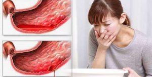 Đau bao tử nôn ra máu là biến chứng nguy hiểm của bệnh dạ dày