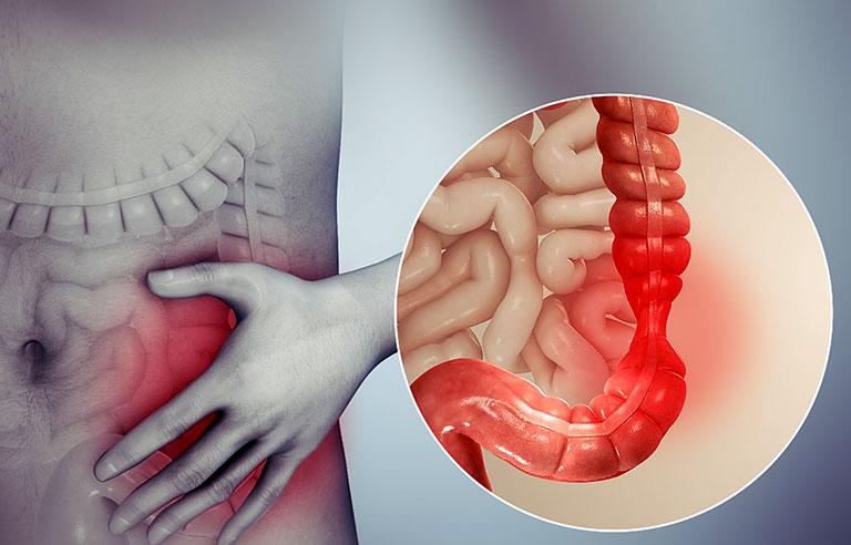 nguyên nhân đau vùng thượng vị