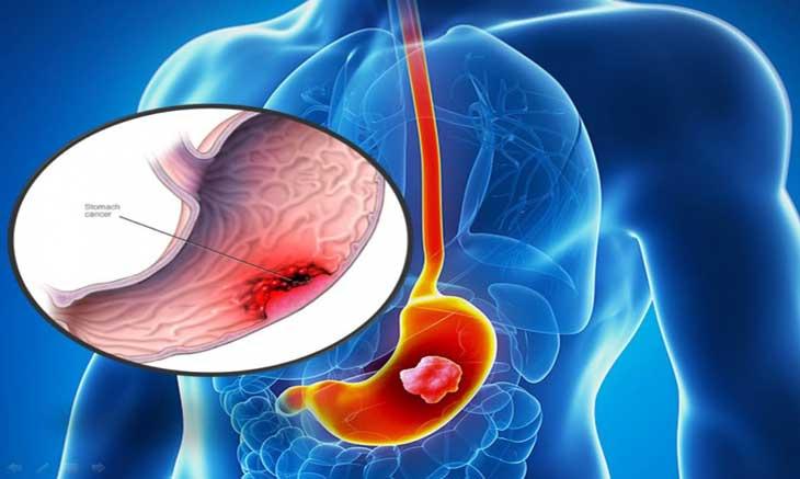 Đau dạ dày cấp nếu không điều trị có thể dẫn đến xuất huyết, gây nguy hiểm