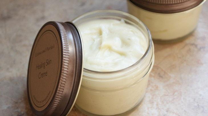 Kem dưỡng chứa bơ cacao cũng được nhiều người lựa chọn để chữa bệnh ngoài da