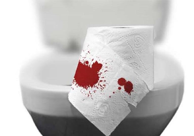 Đại tiện ra máu là triệu chứng đặc trưng của bệnh trĩ và dễ nhận biết nhất