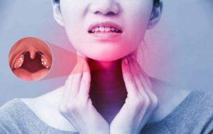 Viêm amidan gây mệt mỏi, suy nhược cơ thể