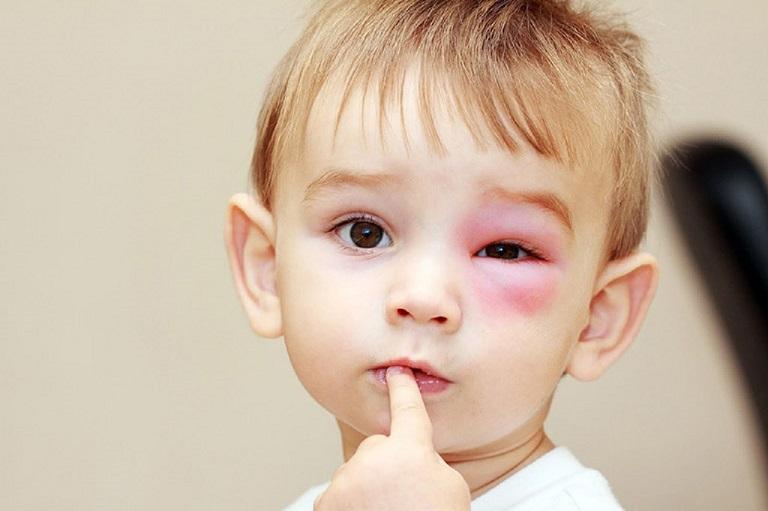Trong một số trường hợp, việc chăm sóc không đúng cách có thể khiến con bị nổi mẩn đỏ quanh mắt.