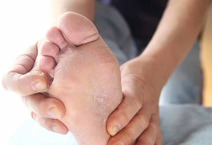 Bệnh á sừng ở chân không có nguy cơ lây lan từ người này sang người khác