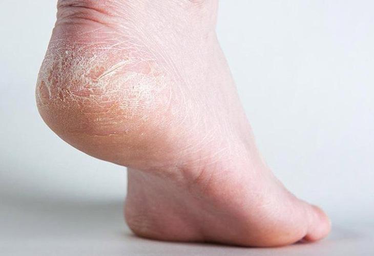 Một trong những dấu hiệu nhận biết bệnh á sừng ở chân là tình trạng khô da và bong tróc