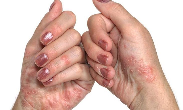 Tùy theo triệu chứng và mức độ nguy hiểm, á vảy nến được chia thành 3 dạng: thể giọt, thể mảng hoặc thể loang lổ