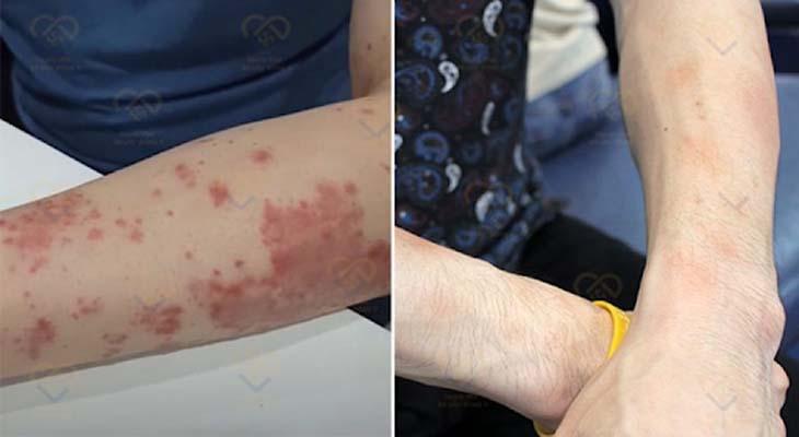 Làn da của anh Sơn trước và sau khi dùng An Bì Thang