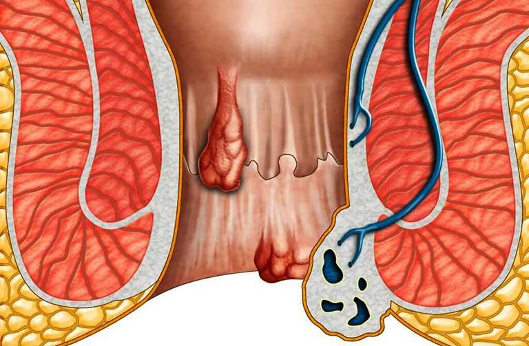 Bệnh trĩ nội độ 4