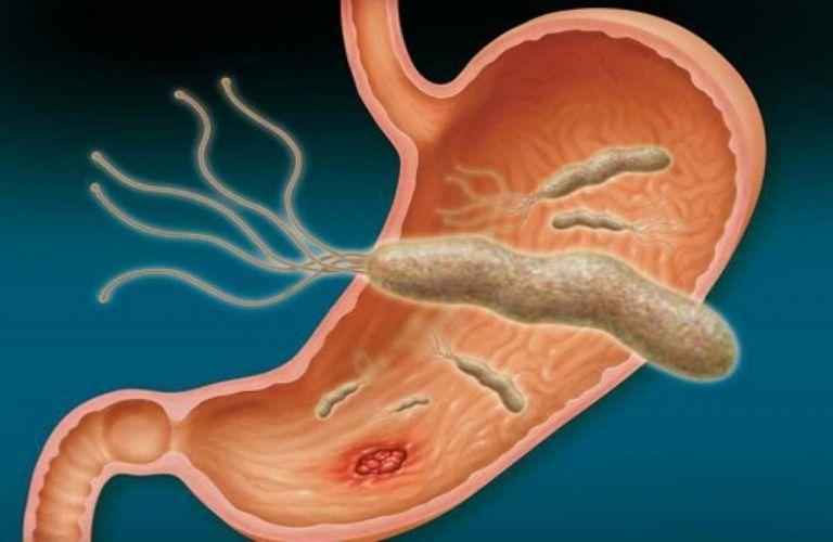 Viêm loét dạ dày là biến chứng xảy ra phổ biến nhất ở những người bị nhiễm khuẩn Hp