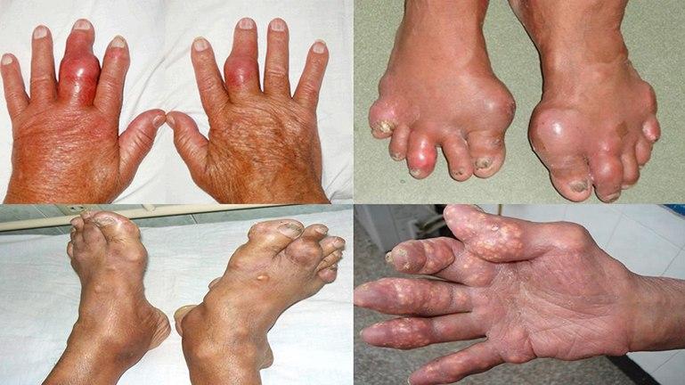 Gout có thể gây ra những biến chứng nguy hiểm