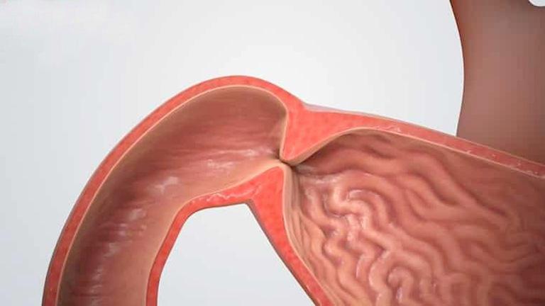 Biến chứng hẹp môn vị ở những trường hợp viêm trợt hang vị dạ dày không tiến hành điều trị dứt điểm