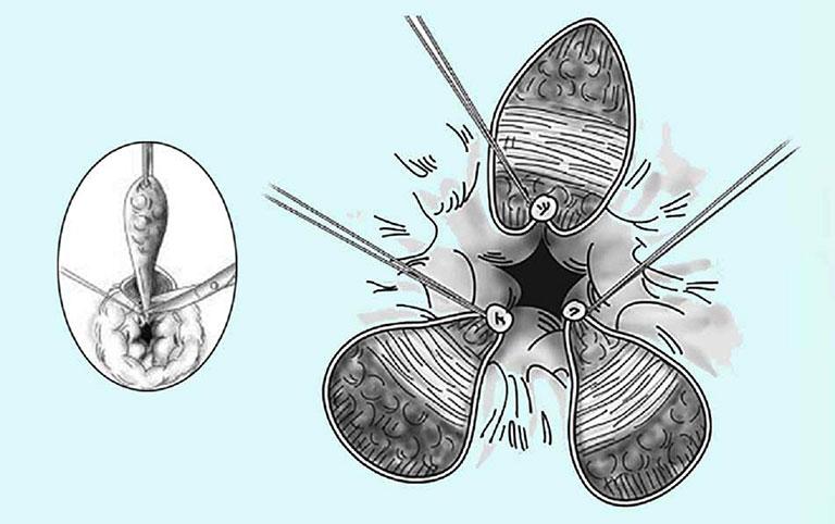 Phương pháp cắt trĩ Milligan Morgan
