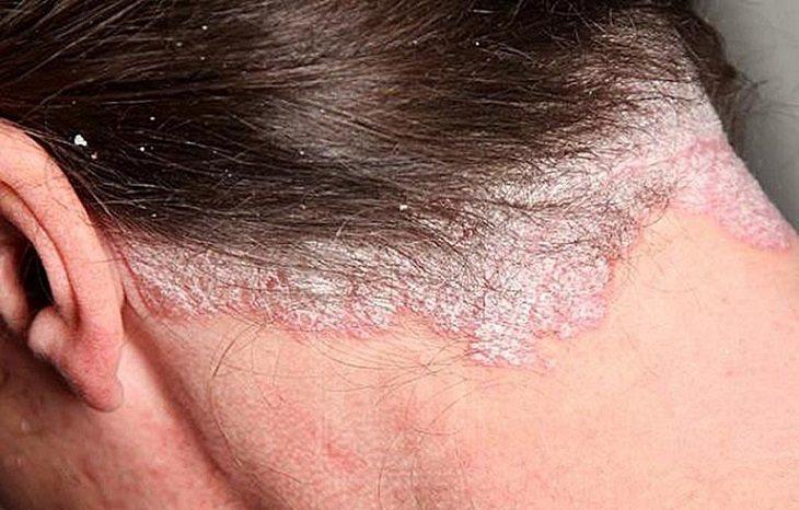 Á sừng da đầu khó điều trị do khó phát hiện và dễ nhầm lẫn sang bệnh da liễu khác