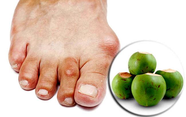 Chữa bệnh gout bằng quả dừa có tốt không?